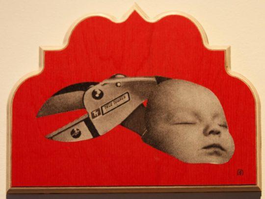 Circumcision or Vasectomy